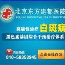 北京白癜风专科医院哪家治疗好