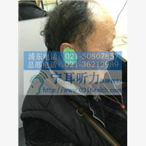 楊浦兒童助聽器