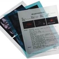 九爾醫用X光膠片穩定、易保存