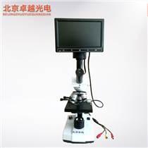 北京卓越 一滴血检测仪 螨虫检测仪