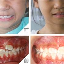 普兰店牙齿诊疗科-沙河口嵌体修复-元磊供