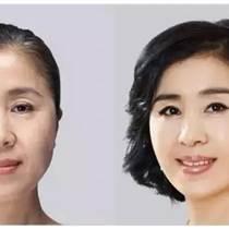 中推联合医学研究院-针灸美容技术培训-解晓丽国色天香
