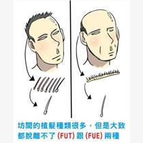 武漢仁愛解答造成頭發損傷從而導致頭發的原因有哪些