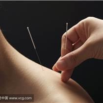 針灸培訓  張文義八字針法治療中風偏癱后遺癥及疑難病