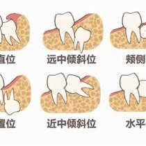 瀘州瓜子牙怎么修復,哪里修復好些