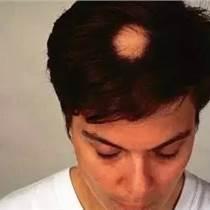 植發為什么是自體毛囊移植有什么優勢