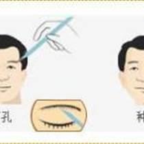 武漢眉毛種植怎么做的