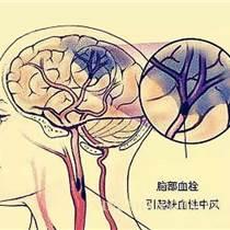 蒙醫張秀春針灸培訓 無痛全腦取栓